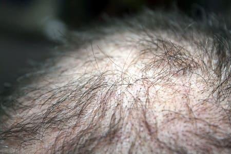 Dong Quai gegen Haarausfal - lichten Haare