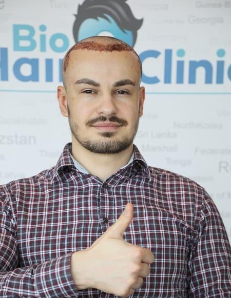Haartransplantation verbessert Selbstbewusstsein