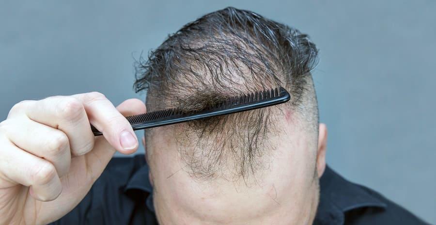 Kopfhauterkrankungen mit Haarausfall