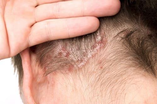 Kopfhauterkrankungen mit Haarverlust Schuppenflechte