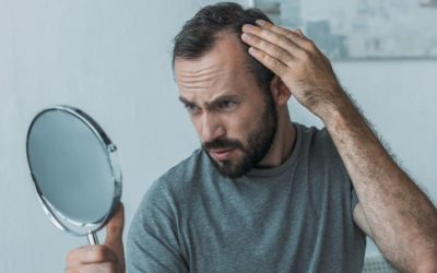 Welche Mineralien bei Haarausfall helfen können