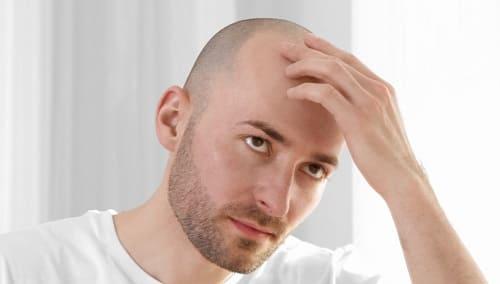 Wodurch wird einseitiger Haarausfall ausgelöst