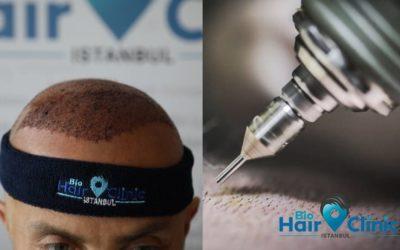 Hohlnadel Haartransplantation