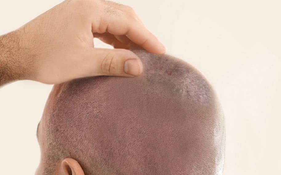Juckende Kopfhaut nach Haartransplantation
