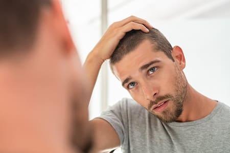 Regenerationen Haare - Junge Mann schaut Geheimratsecken an