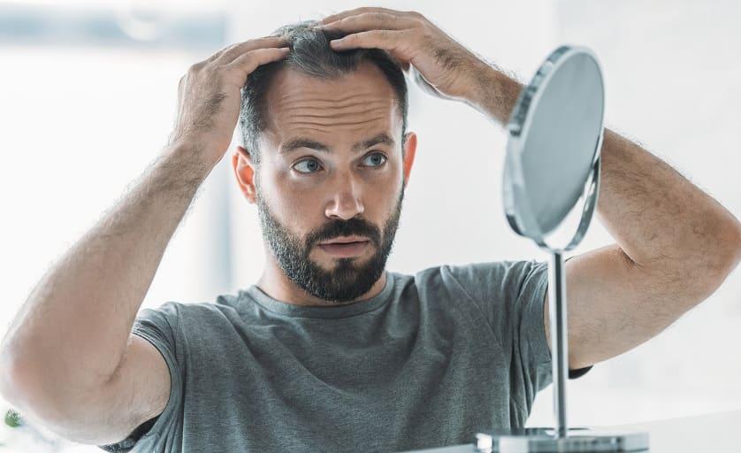 Alopezie Leitlinie - Junge Mann vor dem Spiegel schaut Geheimratsecken