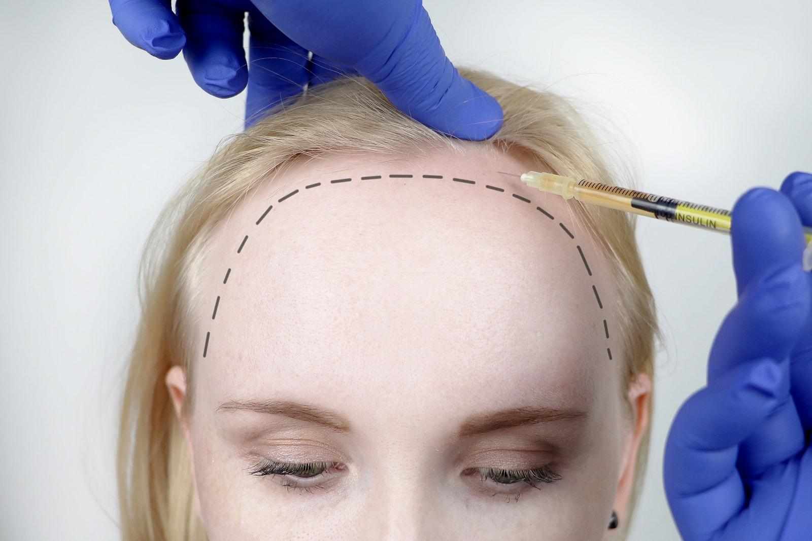 haartransplantation frauen