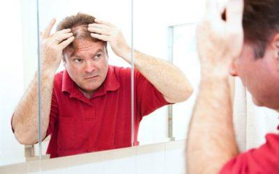 Haarausfall: Ursachen und was dagegen helfen kann