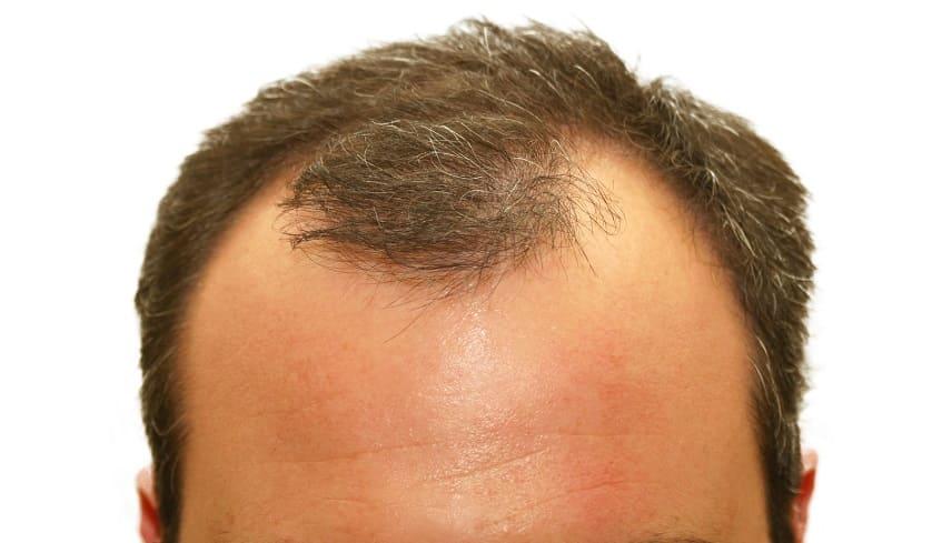 Graue Haare bei Haarausfall - Geheimratsechen