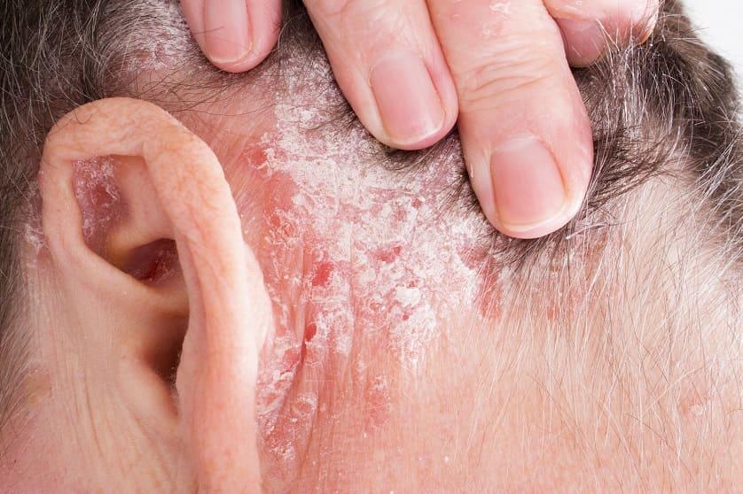 Schuppenflechte an der Kopfhaut durch Autoimmunkrankheit
