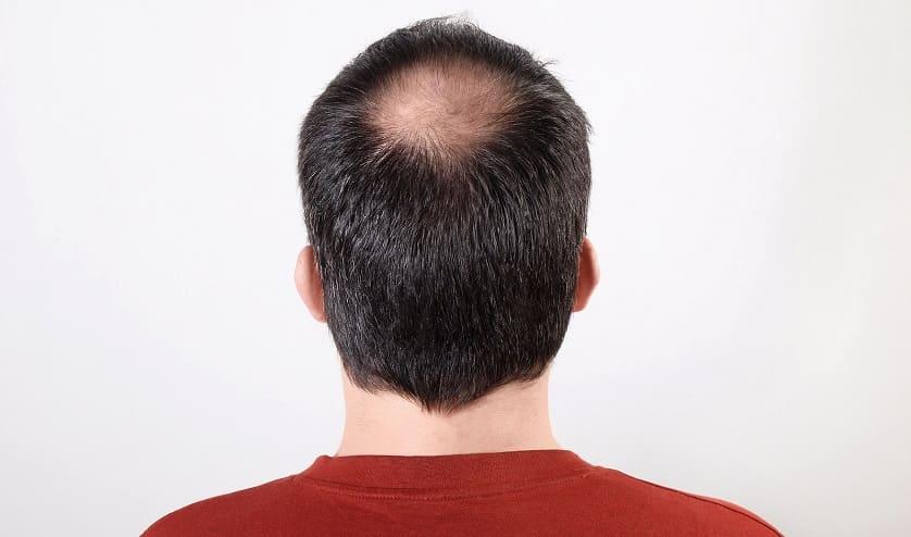 Mann zeigt seinen kreisrunden Haarausfall am Hinterkopf