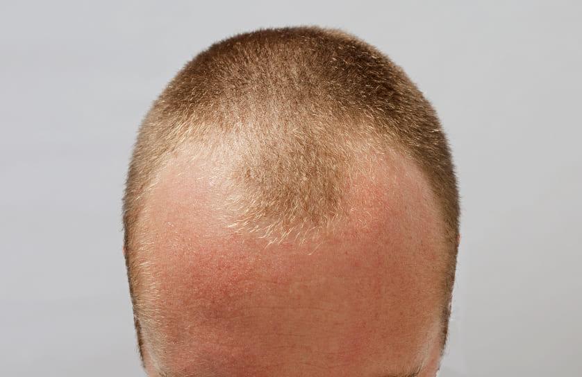 Nahaufnahme vom Kopf eines Mannes mit Haarausfall