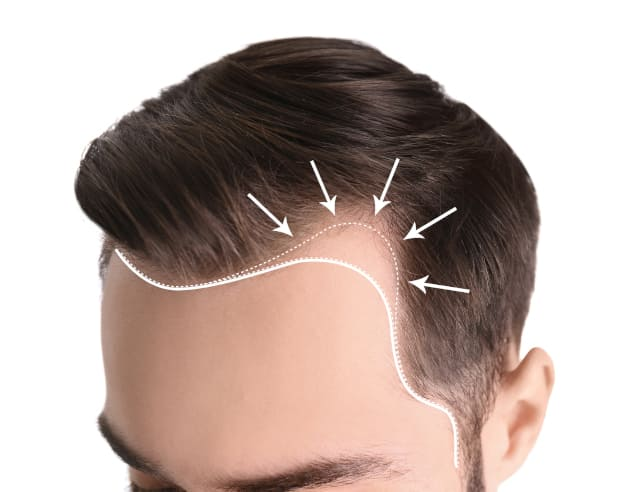 Unnatural hairline in a man with excellent correction suggestion on the forehead