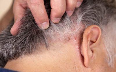 Was können Sie bei grauen Haaren bei Haarausfall tun?