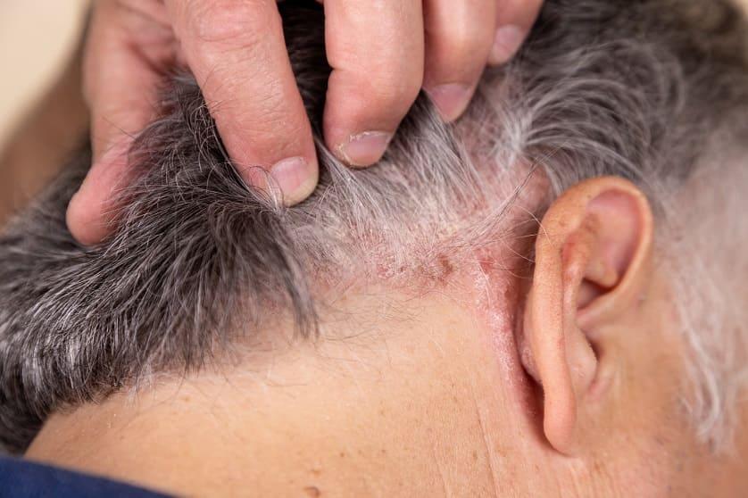 Was können Sie bei Haarausfall mit grauen Haaren tun?