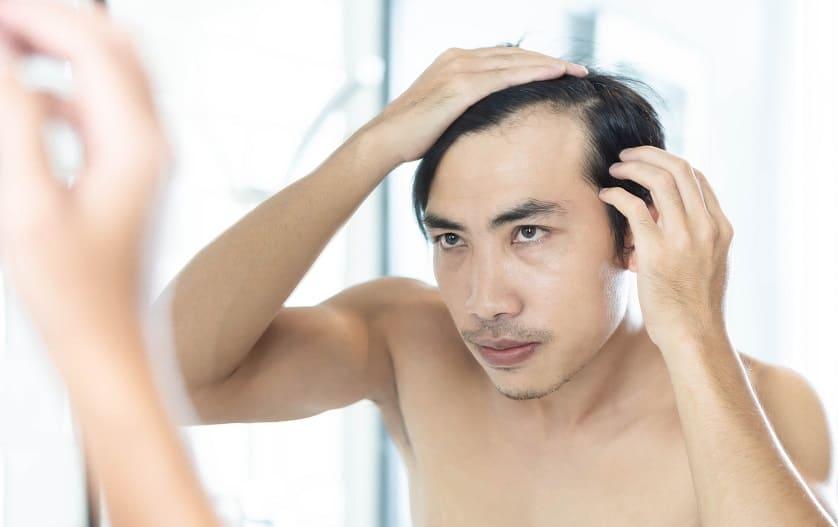 Mann hat Probleme mit seinen Haaren