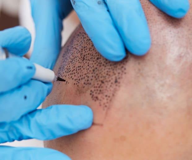 Haarpigmentierung am Kopf