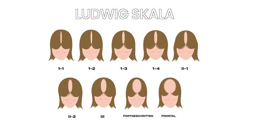 Die Ludwig Skala dargestellt Anhand der neun Stufen des Haarverlusts
