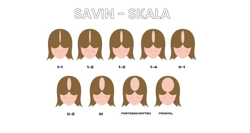 Die-Savin-Skala-anhand-der-9-Stufen-des-Haarausfalls