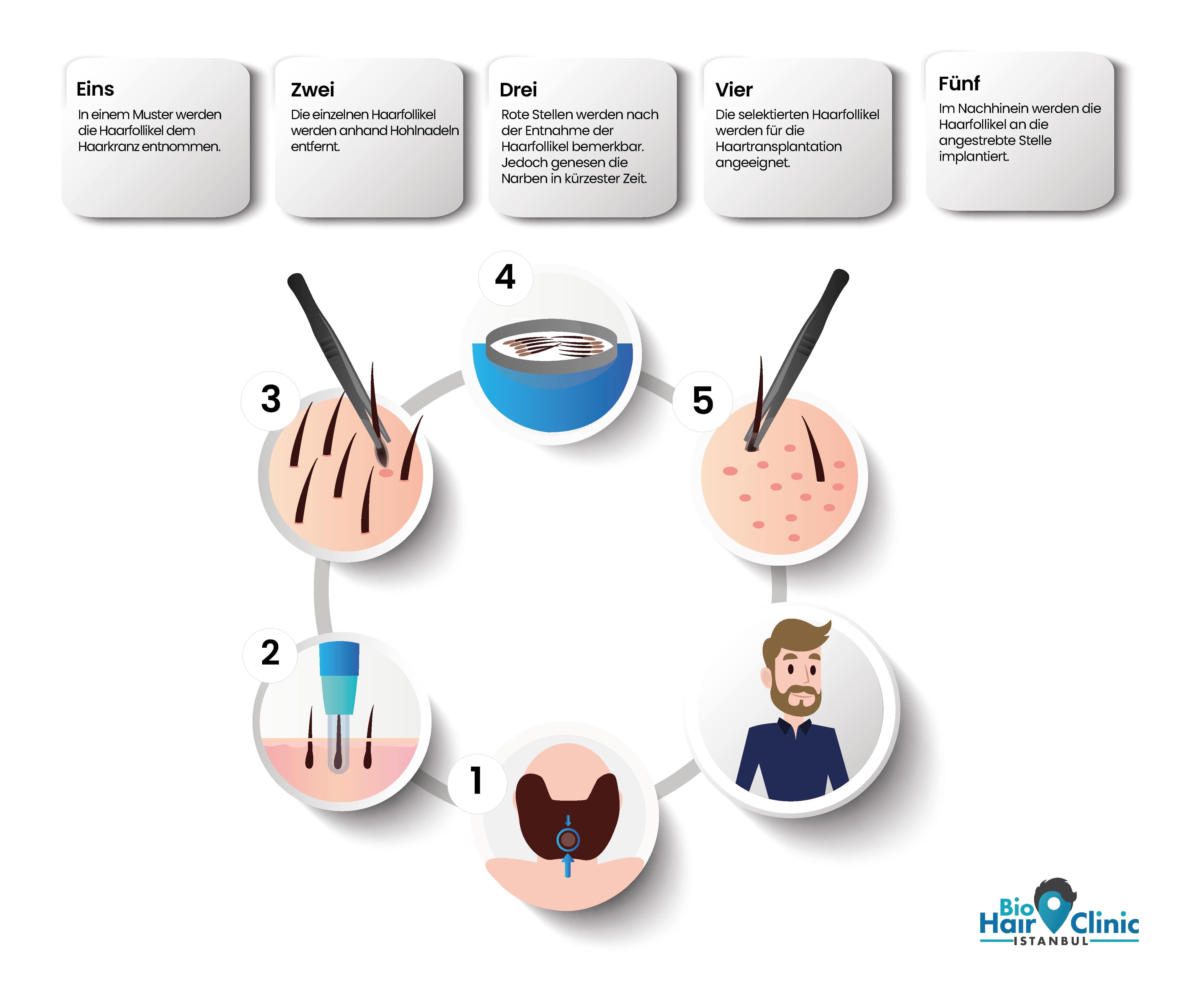 Infografik zum Ablauf einer Haartransplantation.