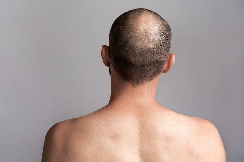 Mann mit diffusen Haarausfall in Rueckenaufnahme