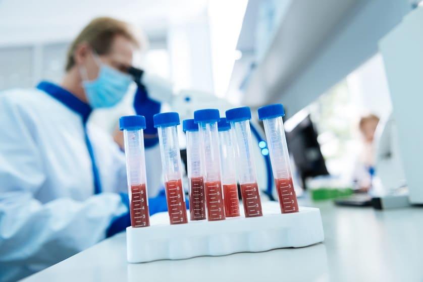 Arzt untersucht Blutproben