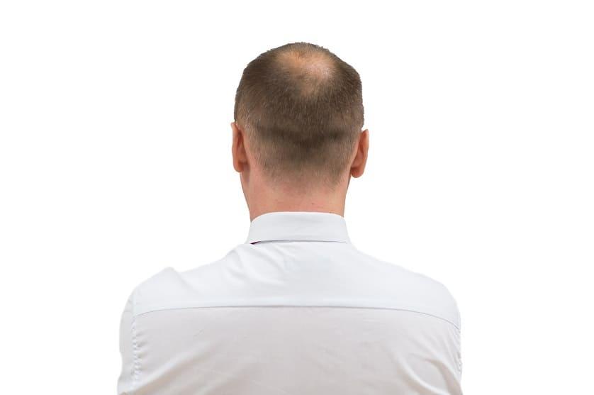 Mann-in-rueckenaufnahme-mit-diffusen-haarausfall