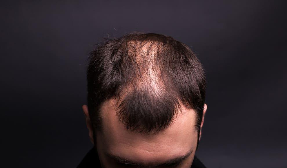 Mann beugt seinen Kopf nach vorne in die Kamera und zeigt seinen Haarausfall