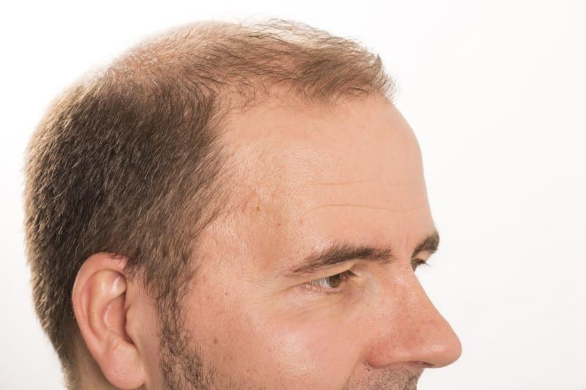 Diffuser Haarausfall – Symptome, Ursachen und Möglichkeiten
