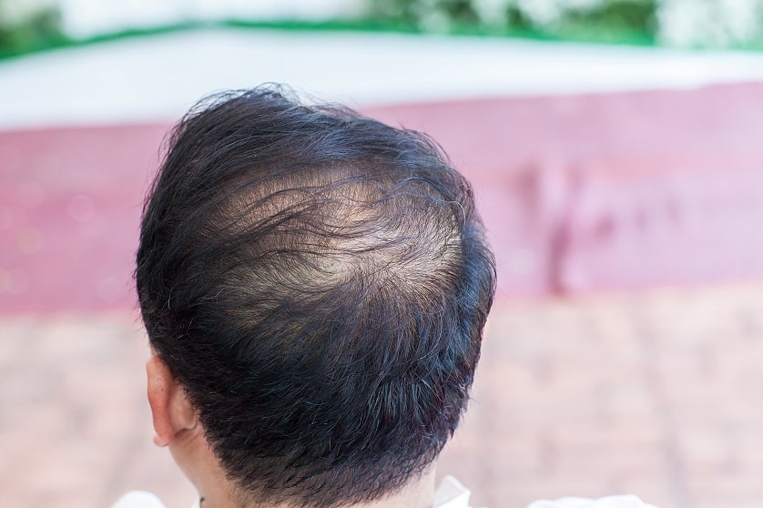 Rückansicht eines Mannes mit diffusem Haarausfall