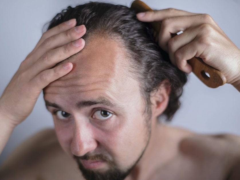 Mann mit Haarausfall kämmt sich die Haare