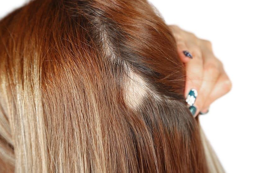Eine Frau zeigt ihren kreisrundern Haarausfall am Hinterkopf