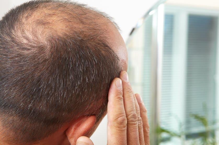 Mann betrachtet im Spiegel seinen androgenetischen Haarausfall
