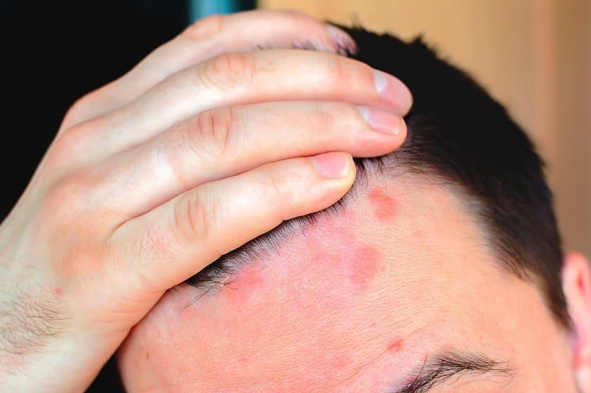 Lichen Ruber Haarausfall: Behandlung und Möglichkeiten