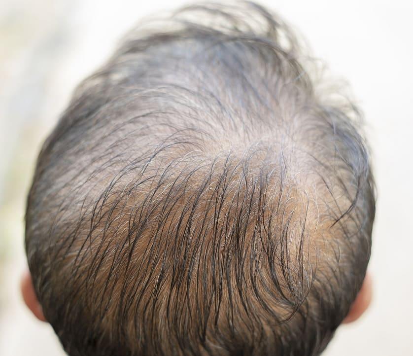 Mann mit diffusem Haarverlust