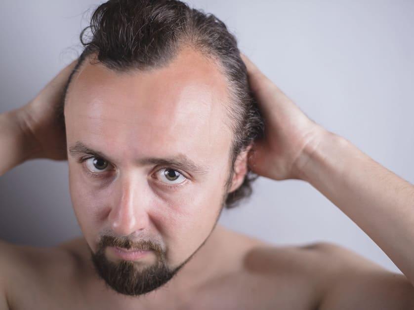 Junger Mann hält mit beiden Händen seine Haare zurück sodass man seinen Haarverlust sieht