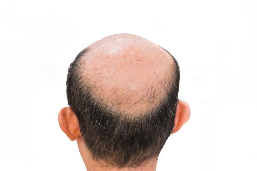 Mann mit Halbglatze zeigt seinen Haarausfall vor einem weißen Hintergrund