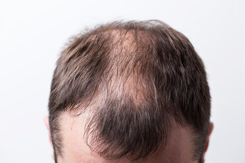 Nahaufname eines Männerkopfes mit Haarschwund
