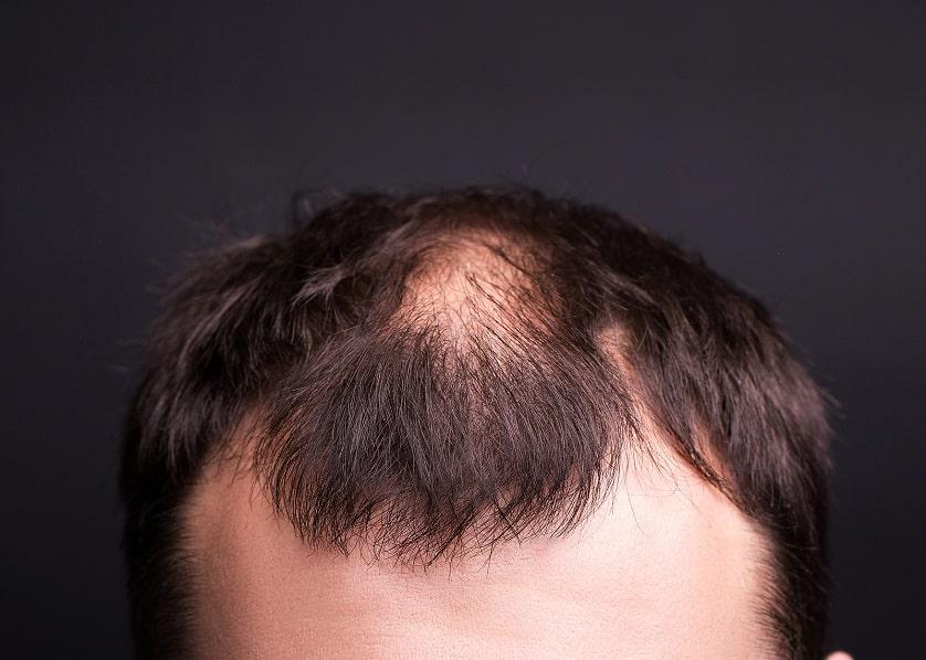 Nahaufnahme von Haarausfall