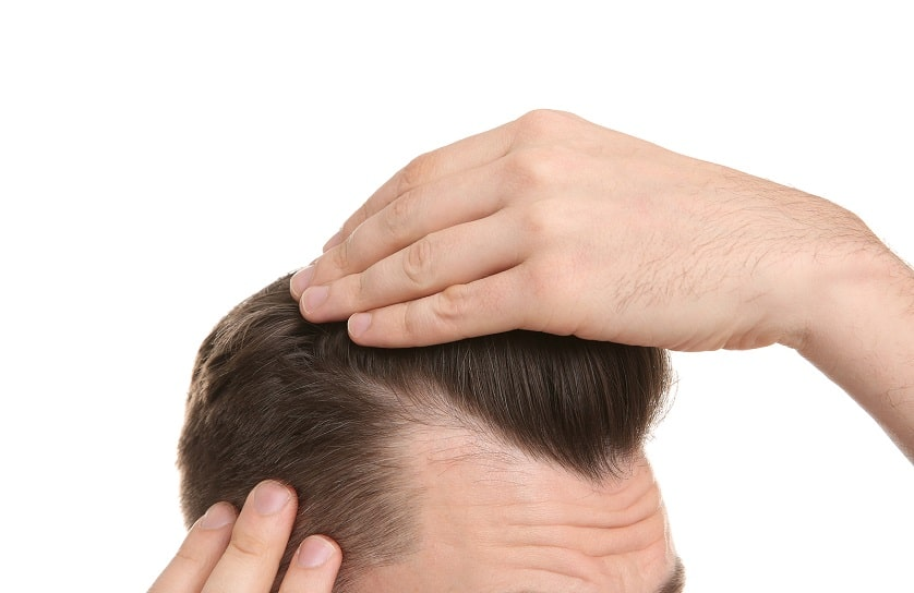 Mann mit Geheimratsecken fasst sich ins Haar