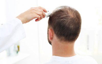 Trichologie – wissenschaftliches Know-how für Ihre Haargesundheit