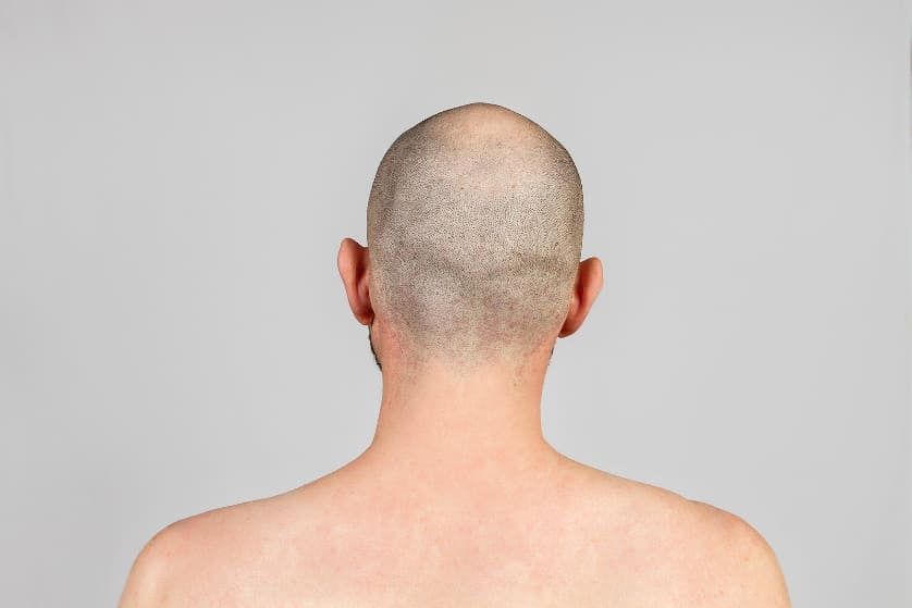 Rückansicht eines Mannes mit Alopecia universalis