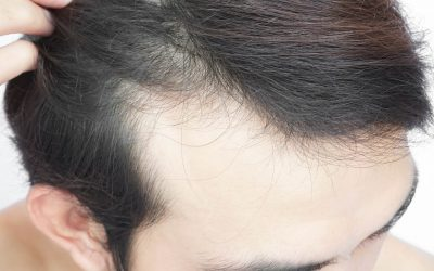 Führt die Behandlung mit Antidepressiva zu Haarausfall?