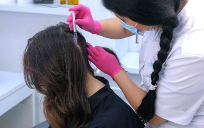 AC-Therapie gegen Haarausfall – Entspannung für die Kopfhaut?