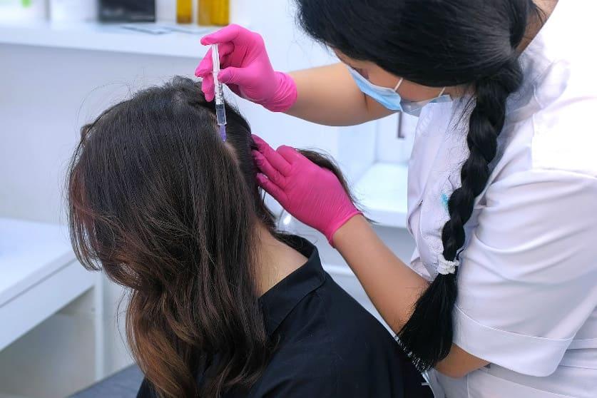 AC-Therapie gegen Haarausfall