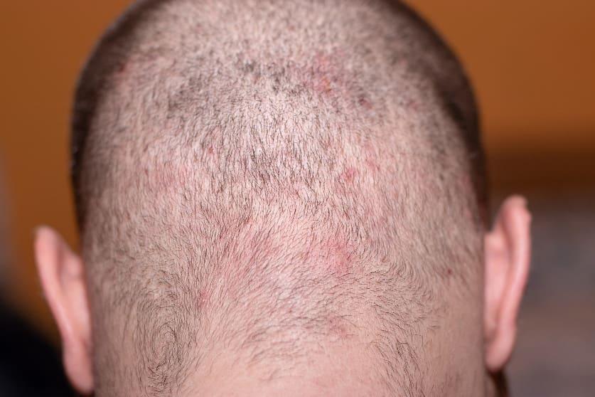 Aufnahme des Hinterkopfes eines Mannes der durch haare färben Haarausfall hat