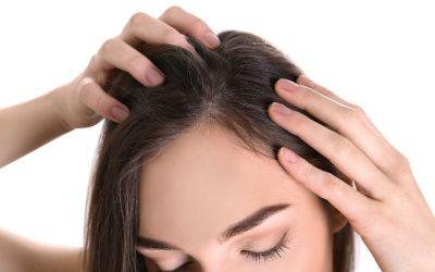 Erblich bedingter Haarausfall bei Frauen und die Merkmale