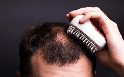 Erste Schritte bei Haarausfall – so müssen Sie vorgehen