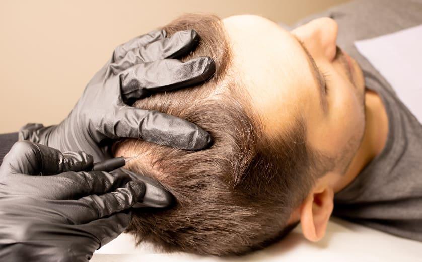 Männlicher Patient erhält eine Haarpigmentierung