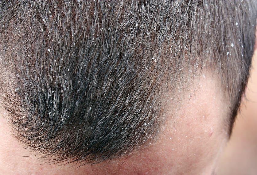 Nahaufnahme der Kopfhaut mit vielen Schuppen